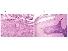 follicular adenoma capsule integrity follicular carcinoma capsule invasion