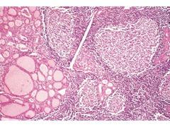 Hashimoto thyroiditis  parenchyma germinal centers