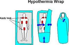 Hypothermia- Symptoms/Cause /treatment