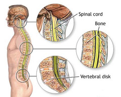 neck or spinal injuries