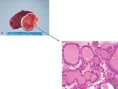 Thyroid follicular adenoma