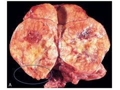 Thyroid follicular carcinoma