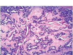 Thyroid medullary carcinoma  calcitonin amyloid deposition