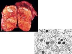 Thyroid medullary carcinoma Parafollicular C cells