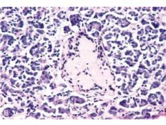 Type 2 diabetes pancreas islet amyloid
