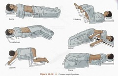 Common surgical positions