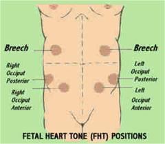 Fetal Heart Tones